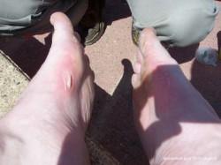 Les pieds de Bravehurt